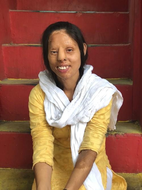 An acid-attack survivor smiles